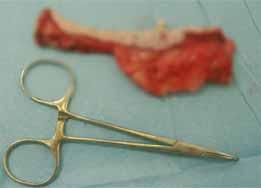 日常の手術5