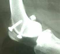 膝蓋骨内方脱臼の手術1