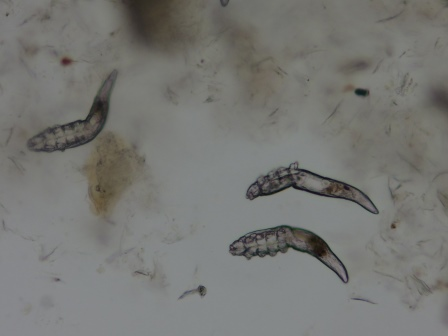 demodex1