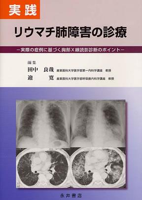 110712_リウマチ肺障害
